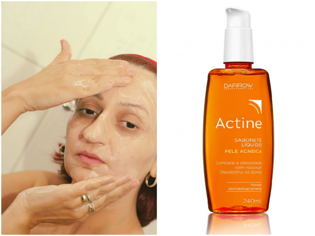 Acne? Lavar pele do rosto com sabonete adequado